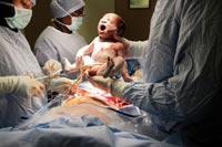 Planned and Emergency Caesarean