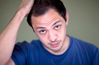 Male pattern hair loss of baldness | Andrology Australia