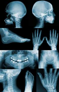 Gene Therapy to Regenerate Bones