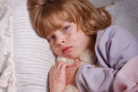 Common childhood infections