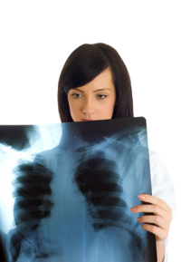 How Does Lung Cancer Spread