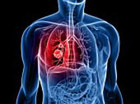 Aftercare Lung Cancer Treatment