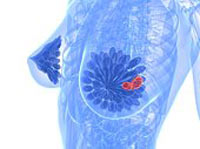 What is Invasive Breast Cancer