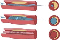 What is Angioplasty