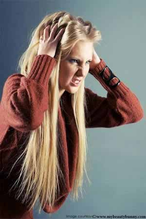 What are the Symptoms of Dandruff