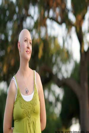 chemotherapy causing baldness