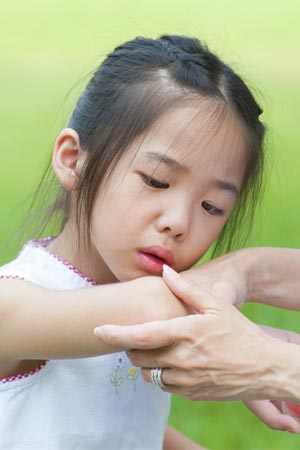 psoriatic arthritis children symptoms