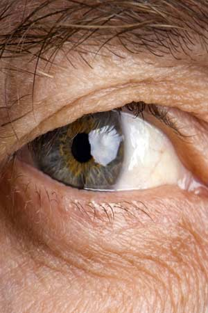 what are cataracts