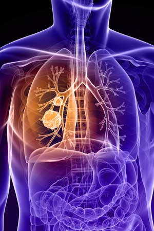 Tips to Prevent Lung Cancer