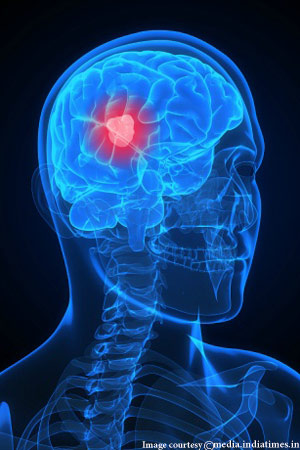 Interesting Facts about Brain Cancer