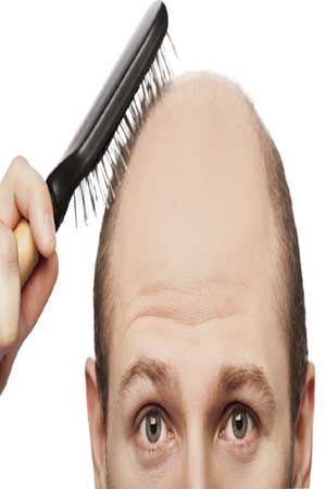 man with frontal hair loss