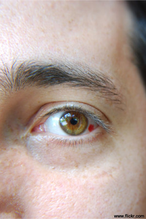 Ruptured blood vessel in young man's eye