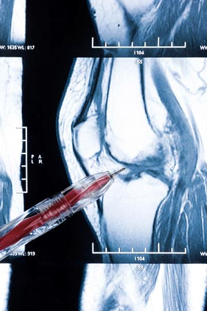 Bone x ray