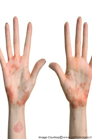 hands affected by scalded skin syndrome