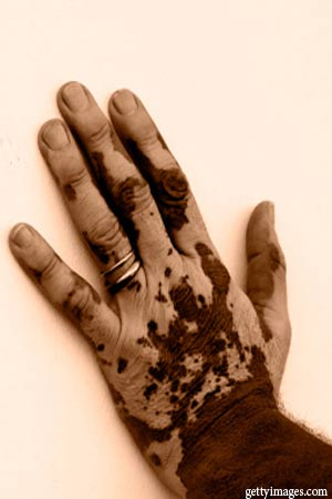 vitiligo affected hand