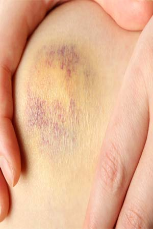 An Abrasion Covers Surface Area Of The Skin Only Epidermis But Does Not Penetrate All Way Through Thin Skinned Bony Areas Such As Knees