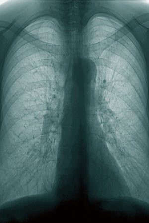 an X Ray of human chest