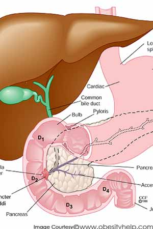 What are the common side-effects of gastric bypass