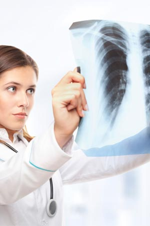 Genetic Risk Factor for Pulmonary Fibrosis Identified