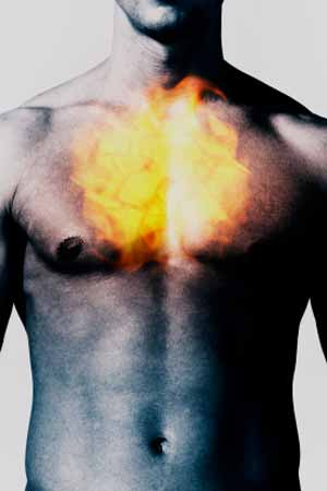 Heart Burn could be a Sign of Vocal Cord and Throat Cancer
