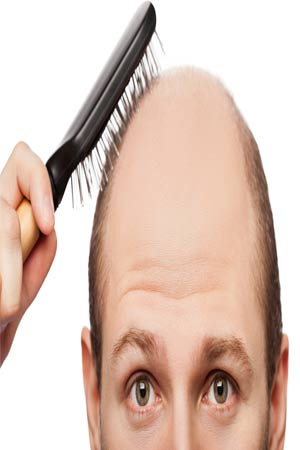 gravity could cause you to go bald