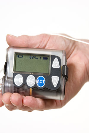 insulin level diabetes