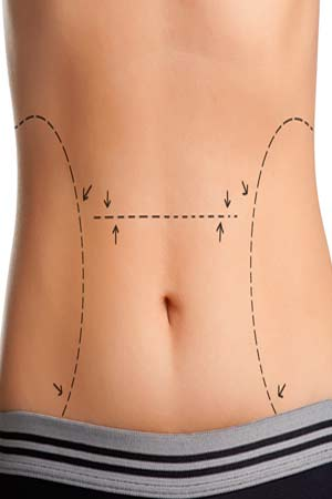 Body Reshaping Surgery