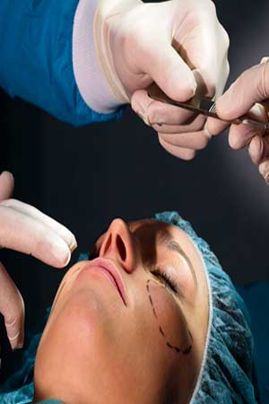 Complications and Consultation for Facelift