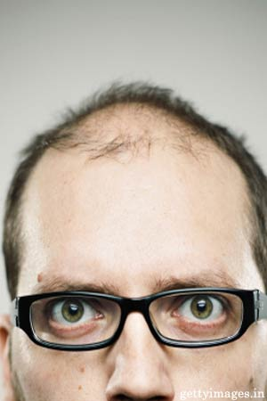 balding tied to lou gehrigs