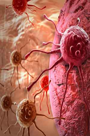 Immune Cells That Help Cancer Spread