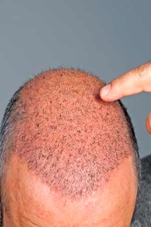 Reduce Swelling After Hair Transplant