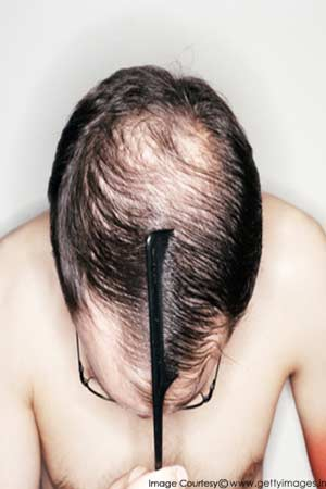 hair loss causes in men