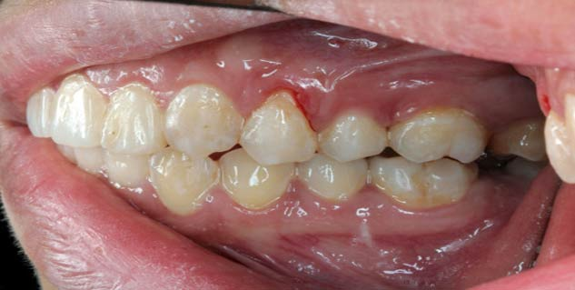 periodontis in hindi