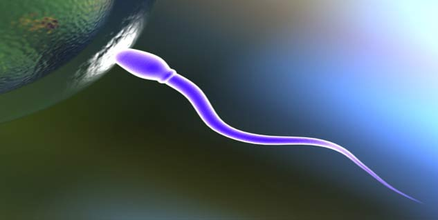 motility issue Sperm
