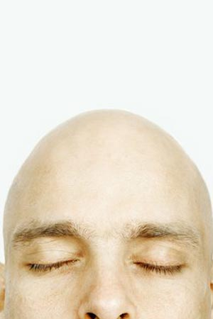 baldness treatment in hindi