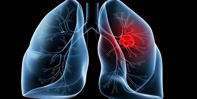 What Is Lung Disease