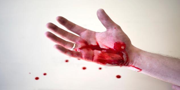 What are the symptoms ... Internal Bleeding Stool
