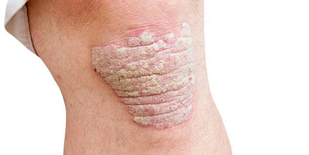 How to Get Rid of Psoriasis Naturally