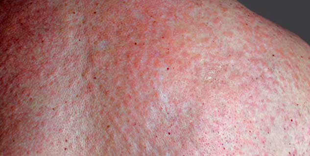 chronic hives adults