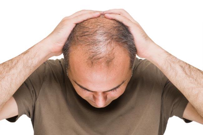 Послеродов перхоть и выпадают волосы
