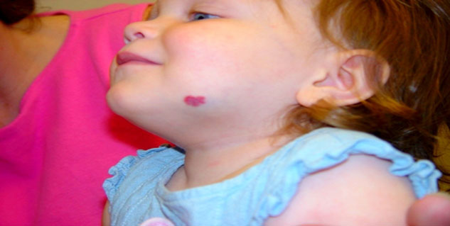 treatment of red birthmark in hindi