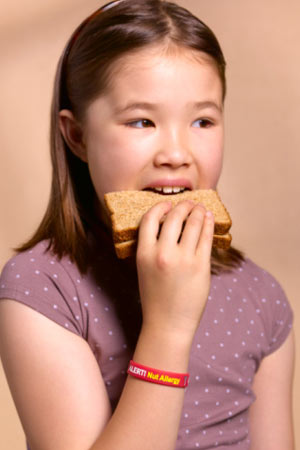 food allergy in NRI children