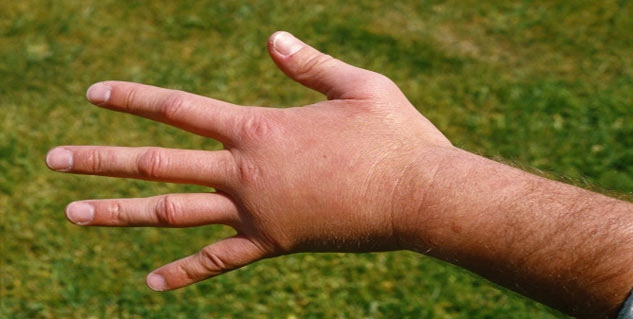 Signs and symptoms of chilblains