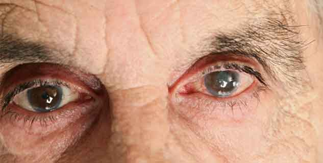 Learn about the Diagnosis and Treatment for Cataract | Understand ...