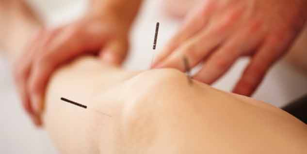 Acupuncture in Hindi