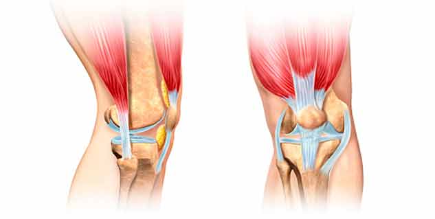 knee pain with week muscle in hindi