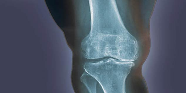 osteoarthritis in hindi