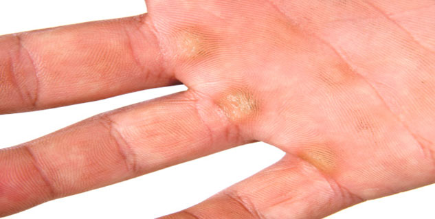 callus treatment