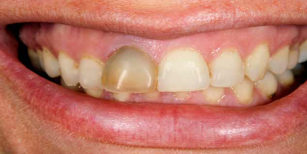 teeth discoloration during pregnancy in hindi