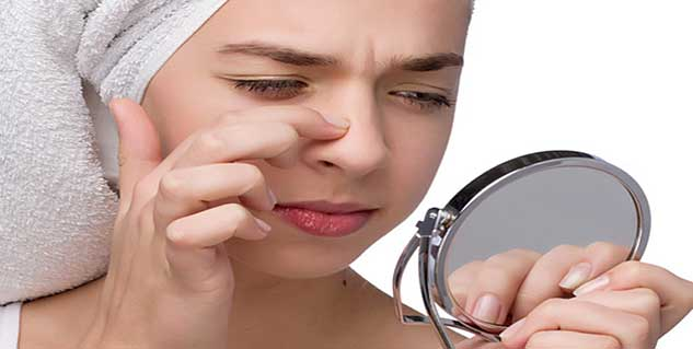 blackheads in hindi